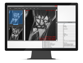 ORPALIS GdPictureNET DICOM plugin (обновление техподдержки на 1 год), 5 разработчиков, DIC11T145M